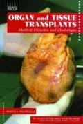 Organ and Tissue Transplants: Medical Miracles and Challenges