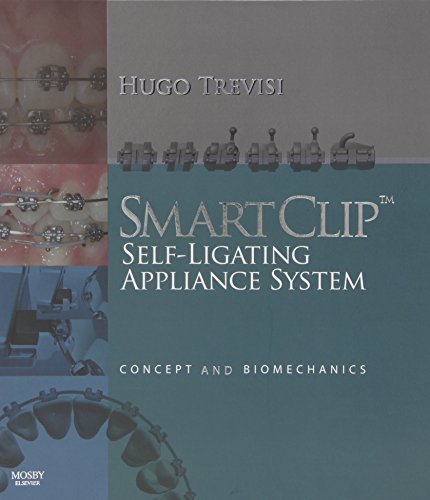 SmartClip Self-Ligating Appliance System: Concept and Biomechanics, 1e - Hugo Trevisi DDS
