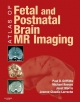 Atlas of Fetal and Postnatal Brain MR - Janet Morris; Jeanne-Claudie Larroche; Michael Reeves; Paul Griffiths