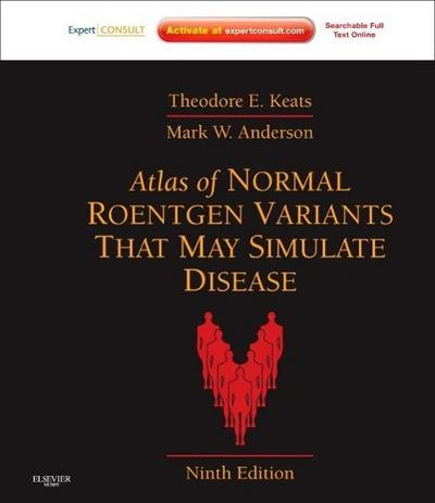 Atlas of Normal Roentgen Variants That May Simulate Disease - Theodore E. Keats