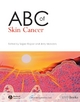 ABC of Skin Cancer - Sajjad Rajpar;  Jerry Marsden