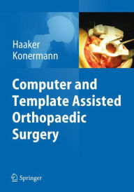 Computer and Template Assisted Orthopedic Surgery - Rolf Haaker