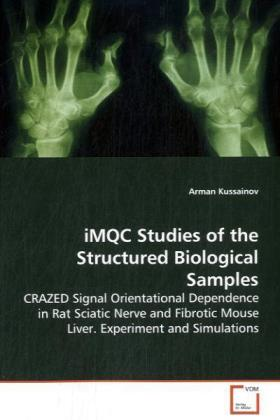 iMQC Studies of the Structured Biological Samples - CRAZED Signal Orientational Dependence in Rat Sciatic Nerve and Fibrotic Mouse Liver. Experiment and Simulations - Kussainov, Arman