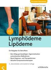 Lymphödeme - Lipödeme - Ein Ratgeber für Betroffene - Franz Josef Schingale