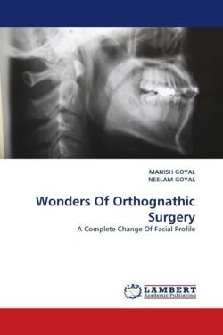 Wonders Of Orthognathic Surgery: A Complete Change Of Facial Profile