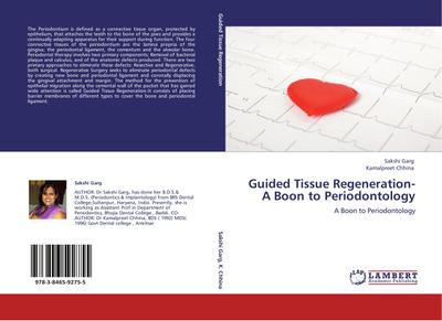 Guided Tissue Regeneration- A Boon to Periodontology - Sakshi Garg