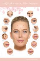 Poster Möglichkeiten der Fillertherapie