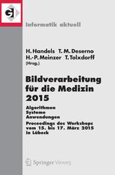 Bildverarbeitung für die Medizin 2015 - Algorithmen - Systeme - Anwendungen. Proceedings des Workshops vom 15. bis 17. März 2015 in Lübeck - Heinz Handels, Thomas M. Deserno, Hans-Peter Meinzer, Thomas Tolxdorff